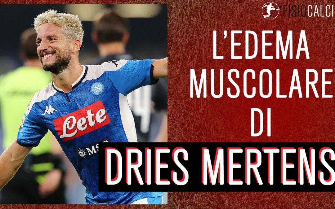 L'Edema Muscolare di Dries Mertens